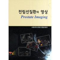 전립선질환의 영상  가본의학   서울대학교병원전립선센터