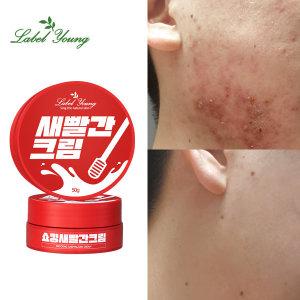 예민+좁쌀+성난피부 고민해결/쇼킹새빨간크림
