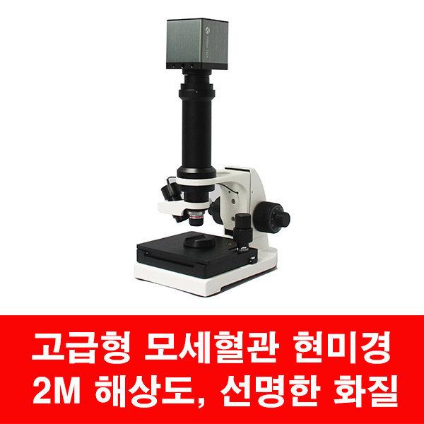 모세혈관현미경 HNN003/ 혈류현미경/200만화소