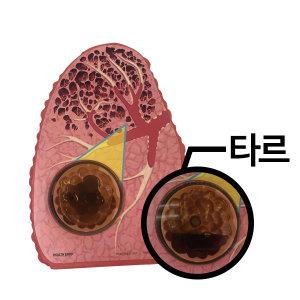(79234) 타르모형 폐모형 타르폐모형 금연교육모형