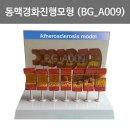 동맥 경화 진행모형 (BG-A009) 동맥경화진행단계 확인