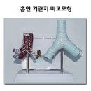 흡연 기관지 비교모형 흡연비교모형 금연교육인체모형