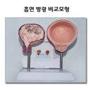 흡연 방광 비교모형 흡연내 혈액 노폐물 침식 금연교육