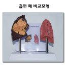 흡연 폐 비교모형 담배연기 폐렴 이산화탄소배출