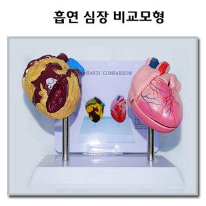 흡연 심장 비교모형 흡연비교모형 금연교육모형