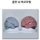 흡연 뇌 비교모형 건강한뇌 흡연뇌 비교모형 금연교육