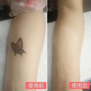 타투가리는스티커 LAN콤 문신 반점 가리기 컨실러